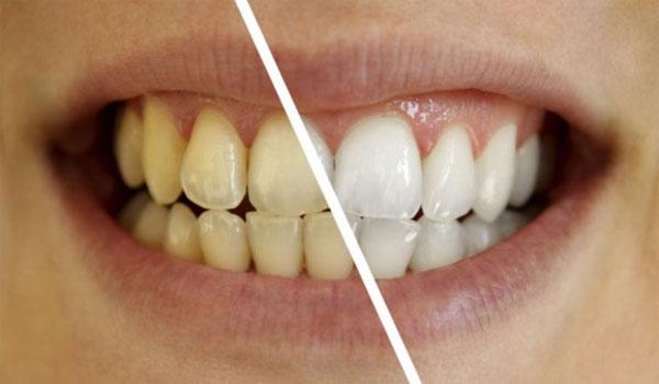 Το μαγικό διάλυμα για πιο αστραφτερά δόντια με το βούρτσισμα