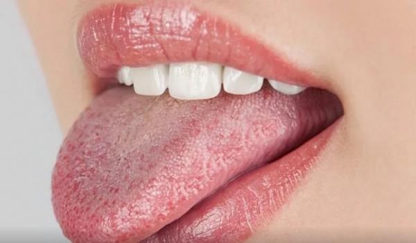 Καρκίνος στη γλώσσα: Τα «ύπουλα» συμπτώματα
