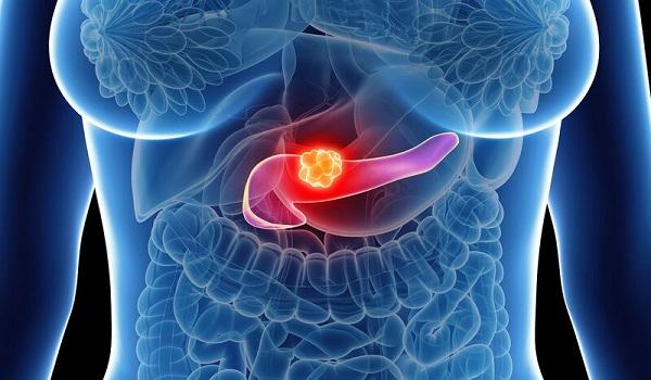 Καρκίνος στο πάγκρεας: Ο ρόλος του βάρους και οι επικίνδυνες ηλικίες