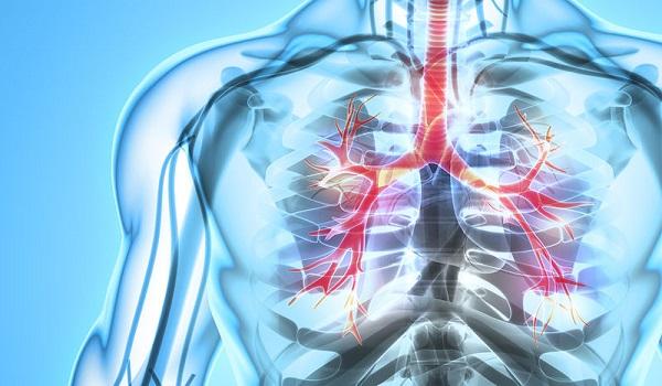Μικροκυτταρικός καρκίνος του πνεύμονα: Τα ύπουλα συμπτώματα του πολύ επιθετικού καρκίνου