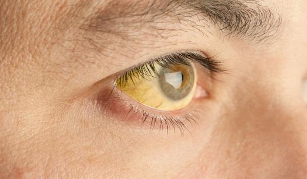 Κίτρινα μάτια: Προσοχή στην ανεβασμένη χολερυθρίνη.  Τι πρέπει να ξέρετε
