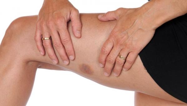 Σημάδια στο δέρμα - Τι δείχνουν για την υγεία