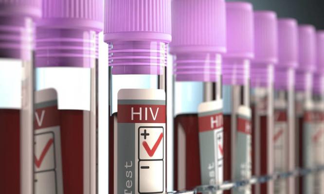 Παγκόσμια Ημέρα κατά του AIDS: Οι 8 βασικές ερωτήσεις για τον ιό HIV που από άγνοια και δισταγμό δεν ρωτάμε