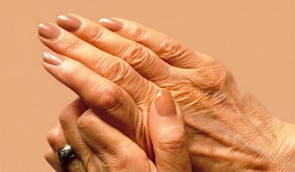 Παγκόσμια Ημέρα Αρθρίτιδας: Τα είδη και με ποια συμπτώματα εκδηλώνονται