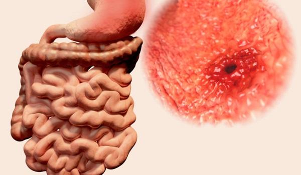 Διάτρηση στομάχου: Συμπτώματα, αίτια, επιπλοκές και θεραπεία