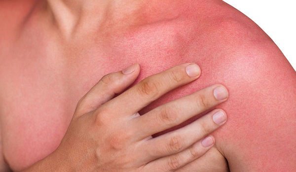 Παθαίνετε συχνά ηλιακό έγκαυμα; Μπορεί να είναι δηλητηρίαση από τον ήλιο