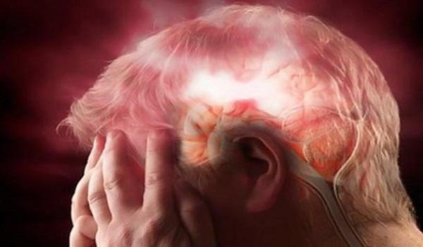 Πώς να προλάβετε το εγκεφαλικό: Σε ποιες περιπτώσεις θεραπεύεται