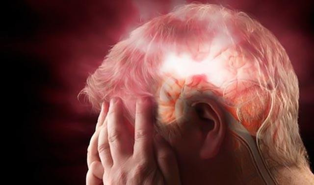 Το παράδοξο της «κακής» χοληστερόλης - Πότε η μείωσή της προκαλεί εγκεφαλικό
