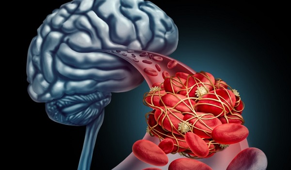 Εγκεφαλικό: Τι προσθέτουν στην ασπιρίνη, για να μειώσουν τον κίνδυνο