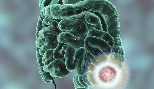Καρκίνος εντέρου: Το διατροφικό μυστικό για την αποτελεσματική αντιμετώπισή του