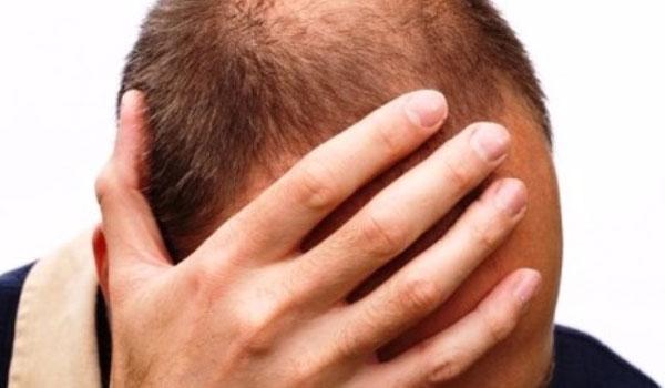 Σημαντική θεραπεία για τη φαλάκρα ανακάλυψαν επιστήμονες