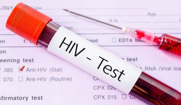 Ένα σούπερ-αντίσωμα και ένα φθηνό χάπι τα νέα «όπλα» κατά του ιού HIV