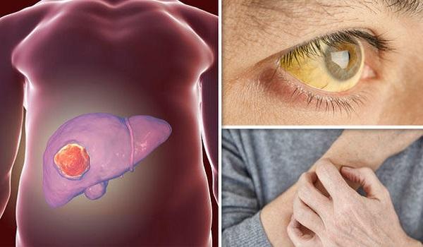 Καρκίνος του ήπατος: Εφτά συμπτώματα καίριας σημασίας – Μεγάλη προσοχή