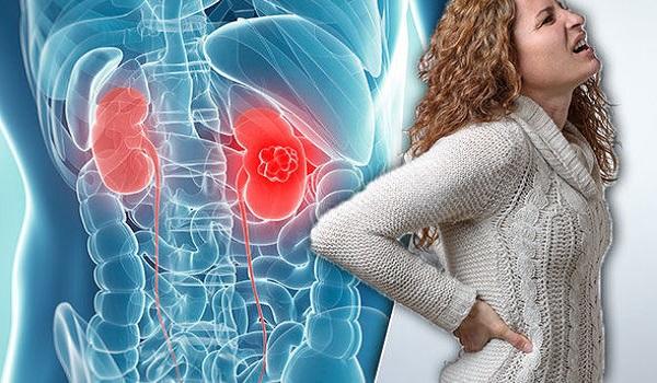 Πέτρες στους νεφρούς – Διατροφή: Αυτές οι τροφές σας προστατεύουν. Τι να προσέχετε