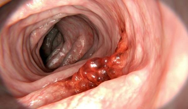 Καρκίνος παχέος εντέρου: Ποια είναι τα πρώτα συμπτώματα