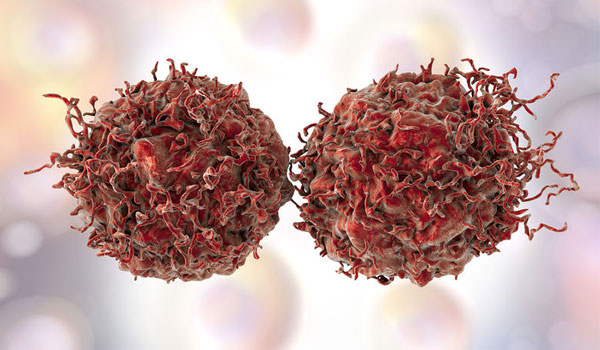 Καρκίνος: Τα πέντε προειδοποιητικά σημάδια