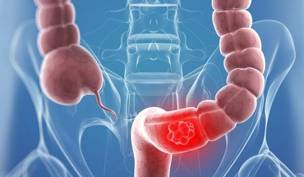 Καρκίνος του παχέος εντέρου: Οι πιο επίφοβες ηλικίες - Τα κρίσιμα πρώιμα συμπτώματα