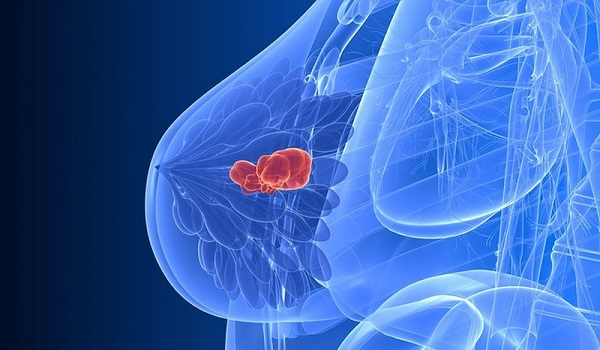 Ποια τροφή αυξάνει τον κίνδυνο εκδήλωσης καρκίνου του μαστού