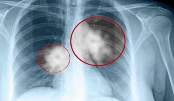 Καρκίνος του πνεύμονα: Τα δύο σημάδια που δεν πρέπει να αγνοήσετε