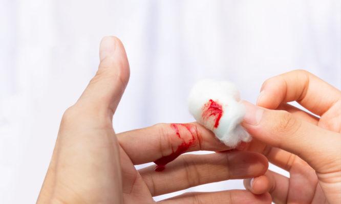Αιμορραγία: Επτά αποτελεσματικοί τρόποι για να τη σταματήσεις