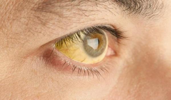 Κίτρινα μάτια: Τι προμηνύουν για την υγεία