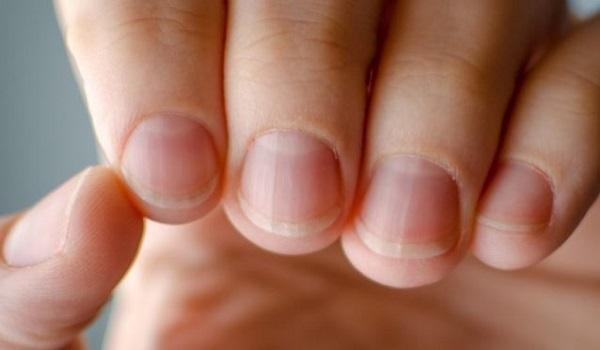 Ποιο σημάδι στα νύχια φανερώνει πρόβλημα υγείας