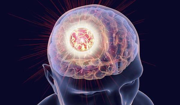 Τα 8 ύποπτα σημάδια που φανερώνουν όγκο στον εγκέφαλο
