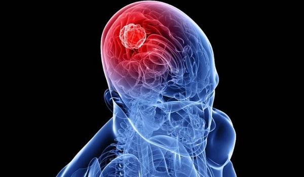 Όγκος στον εγκέφαλο: 7 προειδοποιητικά σημάδια που πρέπει να ξέρετε