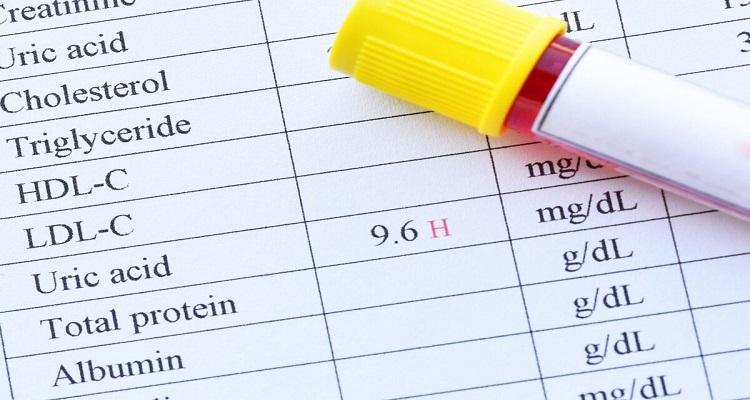Ουρικό οξύ: Τι πρέπει να φάτε για το ρίξετε