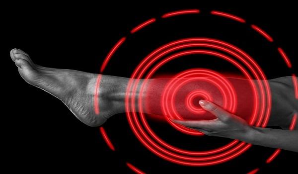 Θρόμβος στο πόδι: Για ποιους καρκίνους αυξάνει τον κίνδυνο
