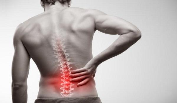 Πώς να αντιμετωπίσετε τον πόνο της μέσης με φυσικό τρόπο