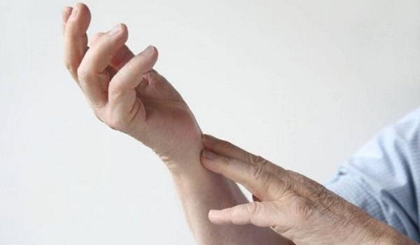 Ρευματοειδής αρθρίτιδα: 10 πρώιμα συμπτώματα