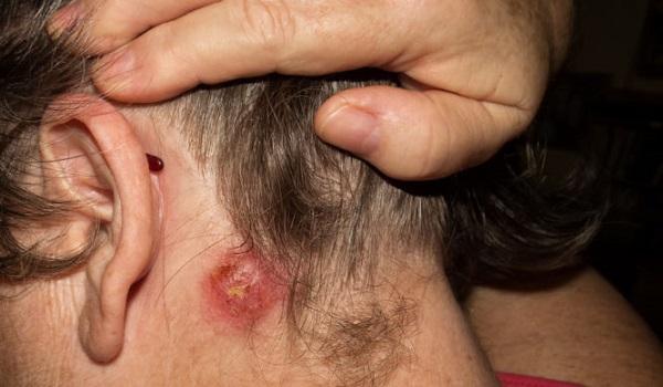 Σταφυλόκοκκος: Ποια τα πρώτα σημάδια της μόλυνσης - Ποιοι κινδυνεύουν περισσότερο