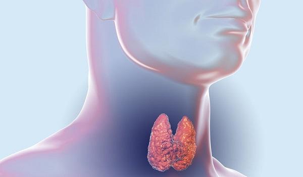 Νόσος Χασιμότο: Ποια είναι τα συμπτώματα της συγκεκριμένης μορφής θυρεοειδίτιδας;