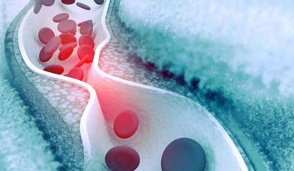 Ποιοι πρέπει να υποβάλλονται τακτικά σε εξέταση χοληστερίνης;