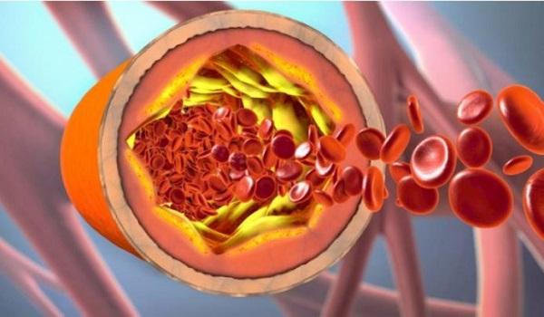 Τι είναι η χοληστερόλη και πώς την χρησιμοποιεί ο οργανισμός – Πότε υπάρχει πρόβλημα