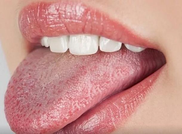 Ποια προβλήματα υγείας μαρτυρά η γλυκιά γεύση στο στόμα