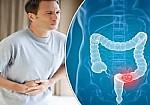 Ποιοι κινδυνεύουν από τον καρκίνο του παχέος εντέρου; Τροφές βοηθούν στην πρόληψη