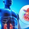 Πέτρες στα νεφρά: Ποια είναι τα πρώτα συμπτώματα – Πώς θα φύγουν χωρίς επέμβαση