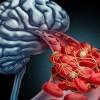 Ανεύρυσμα εγκεφάλου: Προσοχή στα «αθώα» συμπτώματα