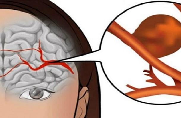 Ανεύρυσμα εγκεφάλου. Μην αγνοήσετε τα αθώα πρώιμα συμπτώματα