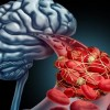 Ανεύρυσμα εγκεφάλου: Προσοχή στα πρώτα «αθώα» συμπτώματα
