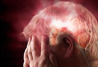 Μίνι εγκεφαλικό: Αυτά είναι τα πρώιμα συμπτώματα