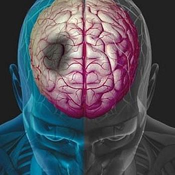 Εγκεφαλικό επεισόδιο: Η κακή συνήθεια που τριπλασιάζει τον κίνδυνο