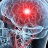 Αταξία του Φρίντριχ: Συμπτώματα, αίτια, διάγνωση της σοβαρής εγκεφαλικής νόσου