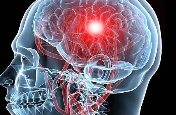 Αγγειακό Εγκεφαλικό: Η παγκόσμια επίπτωση της πανδημίας COVID-19 στην οξεία αντιμετώπισή του