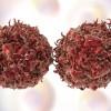 Καρκίνος: Τα πέντε συμπτώματα που δεν πρέπει ποτέ να αγνοήσετε