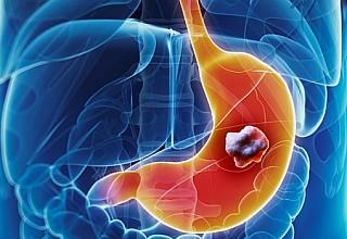 Καρκίνος του στομάχου: Οι πιο σοβαροί παράγοντες κινδύνου