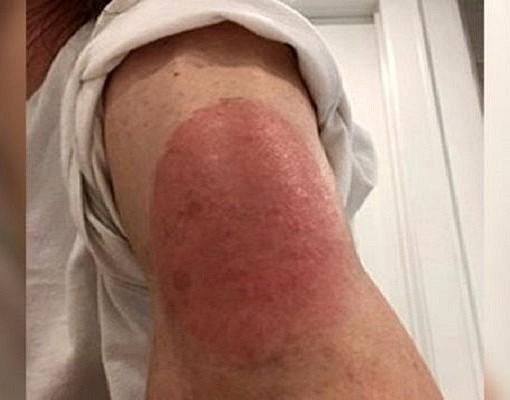 Κορονοϊός: Ποιο από τα εμβόλια COVID-19 μπορεί να προκαλέσει τέτοιο εξάνθημα