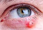 Κριθαράκι στο μάτι: Δείτε τις 4 φυσικές θεραπείες